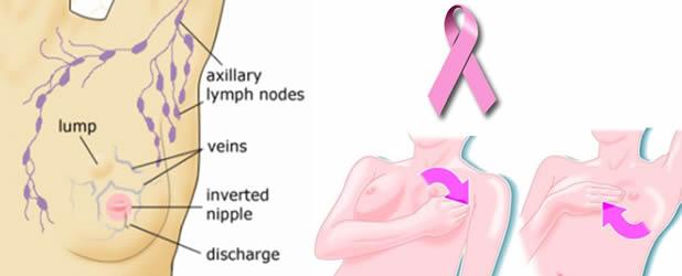 Prepoznajte na vrijeme simptome raka dojke