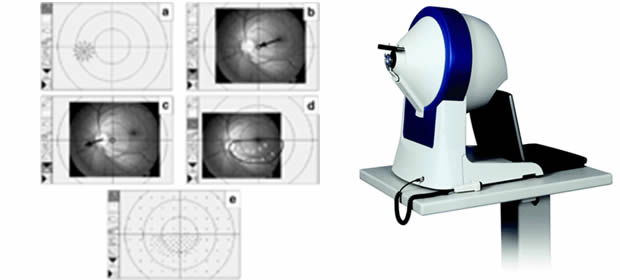 Ispitivanje vidnog polja