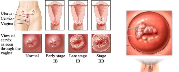 Karcinom grlića materice
