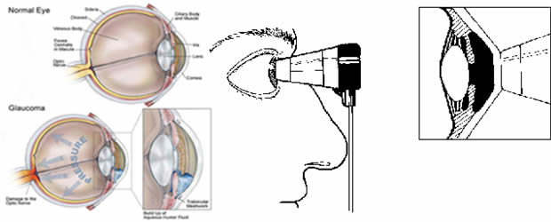 Očni tlak