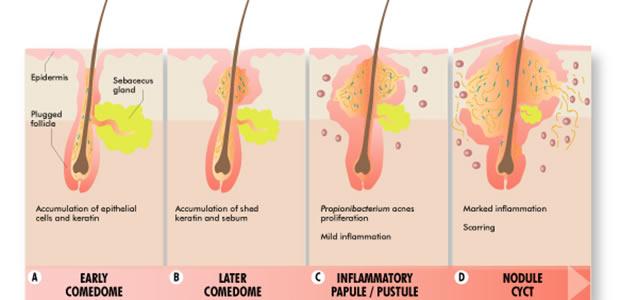 Akne (acne vulgaris i acne rosacea)