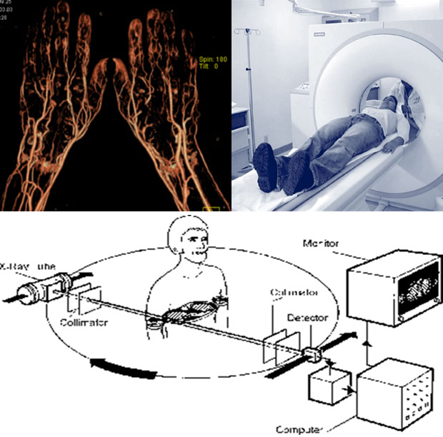 CT - angiografija
