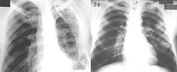 pneumokonioze