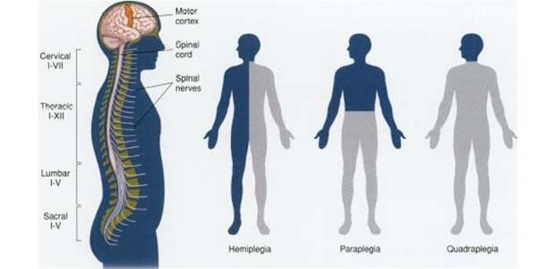 Hemiplegia