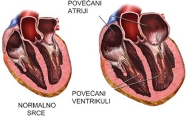 Kardiomiopatije u dječijem uzrastu