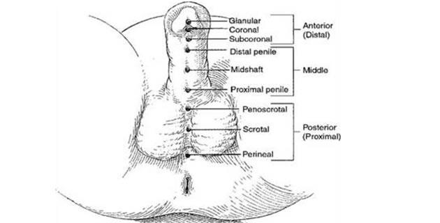 Hipospadija