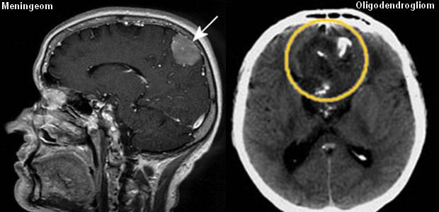 Oligodendrogliom i meningeom