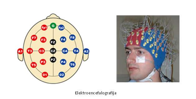 Elektroencefalografija