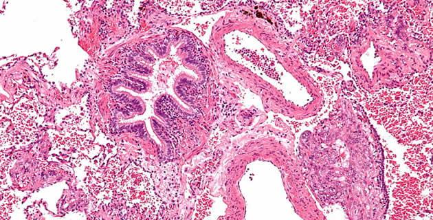 Lymphangioleiomyomatosis patohistološki prikaz