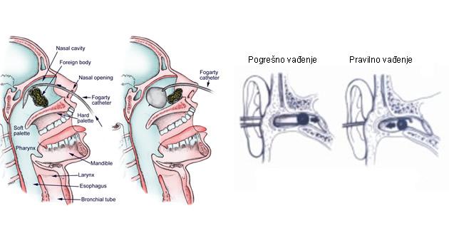 Strana tijela u nosu i uhu