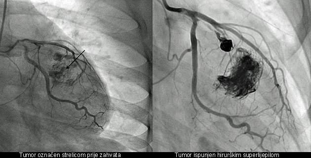 Tumor na srcu