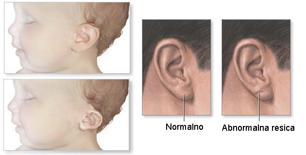 Varijante oblika ušne školjke