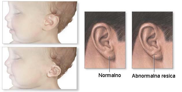 Varijante oblika i položaja ušne školjke