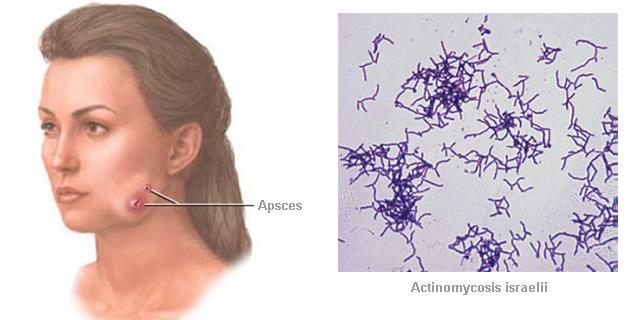 Aktinomikoza