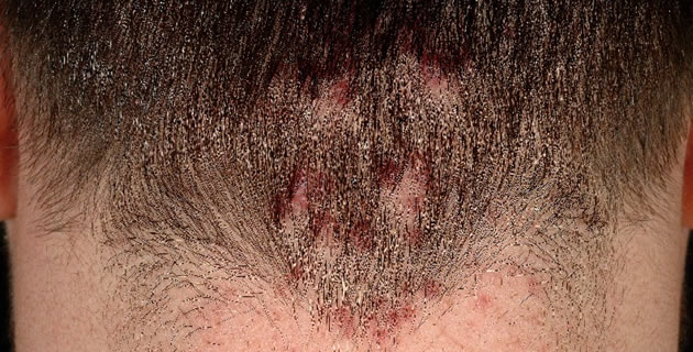 Folliculitis sclerotisans nuchae