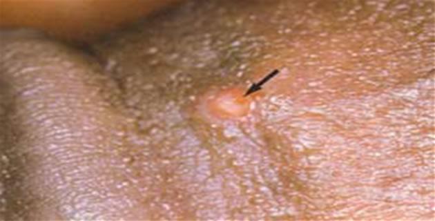 Lymphogranuloma venereum inguinalis