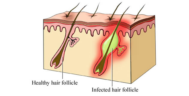 Upala dlake