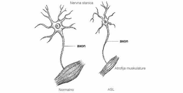 Amiotrofična lateralna skleroza