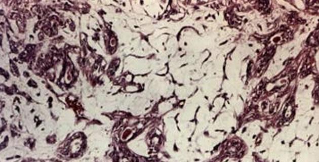 Mioepitelne stanice