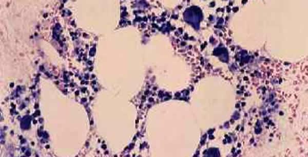 Agranulocitoza