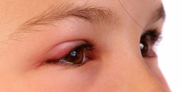 Alergijske manifestacije na kapcima