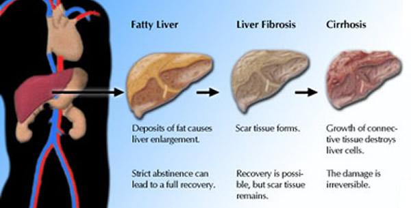 Alkoholna bolest jetre