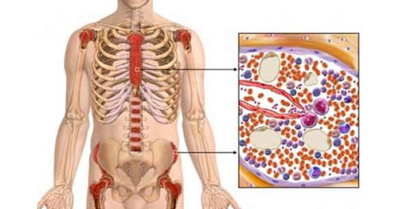 Aplastične anemije