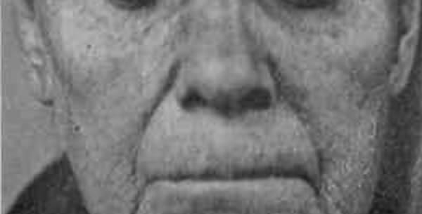 Atrophia cutis senilis