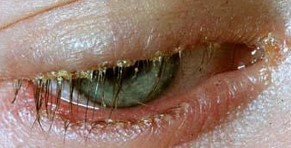 Blepharitis squamosa