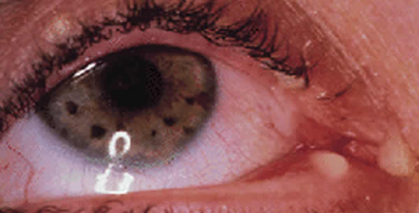 Canaliculitis