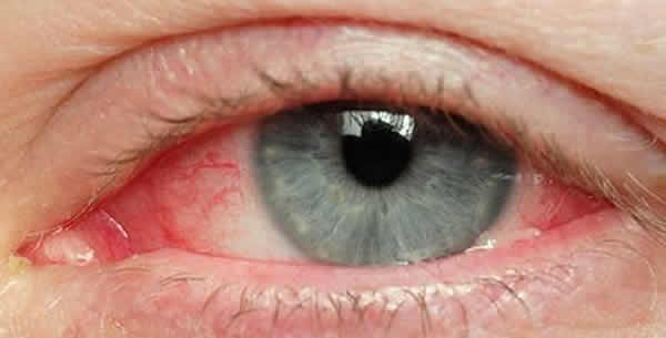 Conjunctivitis catarrhalis chronica