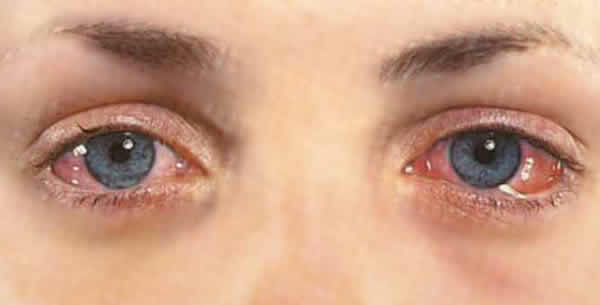 Crveno oko