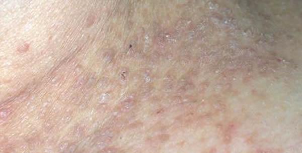 Dyskeratosis follicularis
