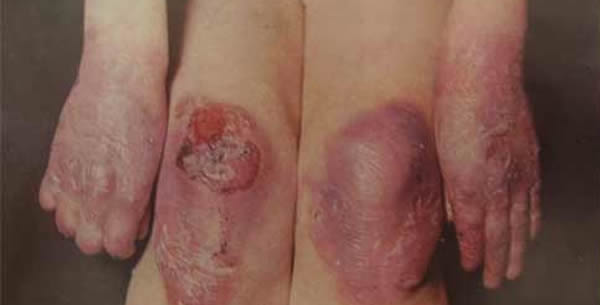Epidermolysis bullosa hereditaria dystrophica