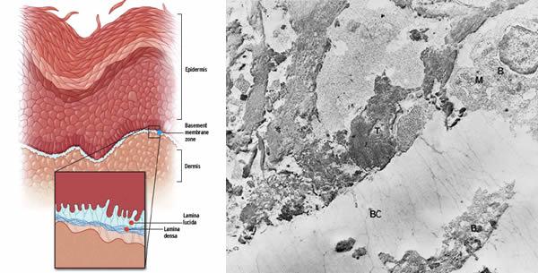 Epidermolysis bullosa hereditaria letalis