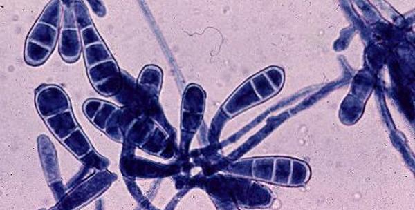 Epidermophytom floccosum