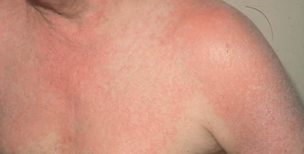 Eritrodermija