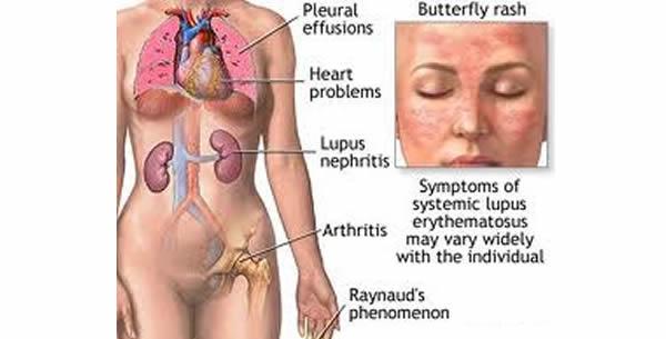 Lupus erythematosus systemicus