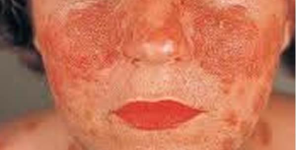 Pemphigus Erythematosus