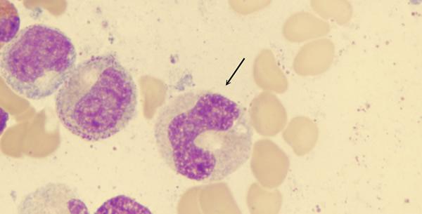 Perniciozna anemija