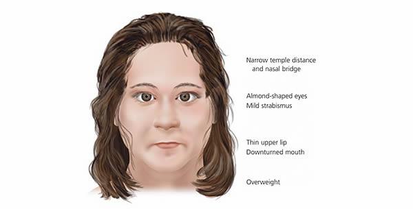 Prader-Willi sindrom