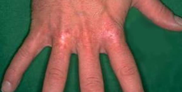 Radiodermatitis acuta