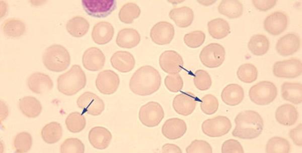 Urođena Sferocitoza
