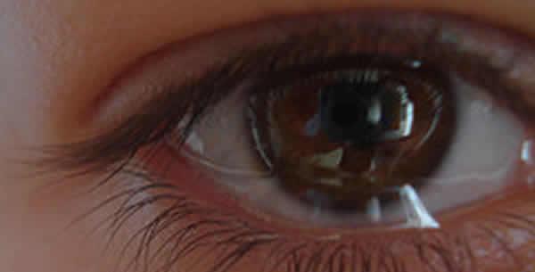 Vlažno oko