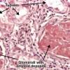 Amyloidosis renis