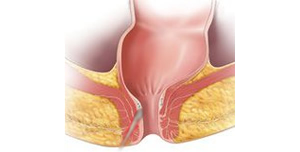 Analna fistula