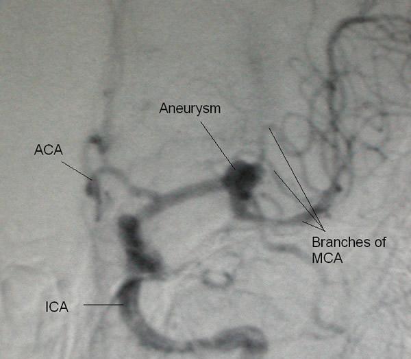 Aneurizma srednje moždane arterije