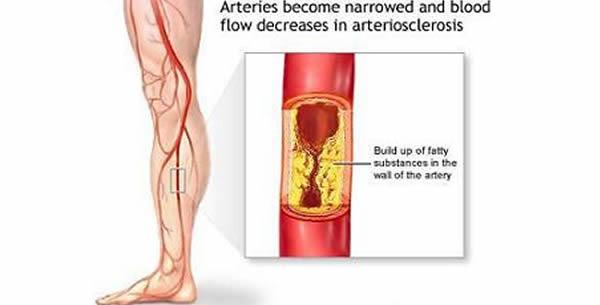 Arteriosclerosis obliterans