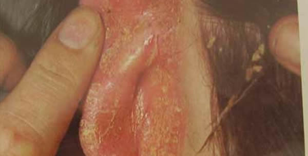 Dermatitis seborrhoica adultorum