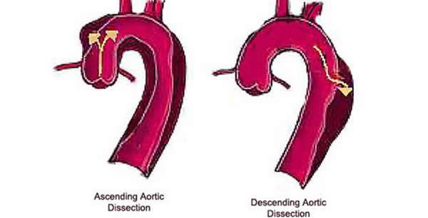 Disecirajuća aneurizma